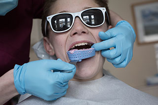 prevention-mouthguard
